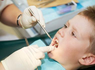 Profilaktyka profesjonalna fluorkowa w gabinecie stomatologicznym